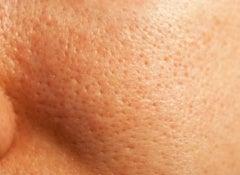 vidgade porer
