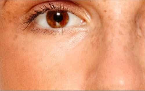 Hemmagjorda krämer för att bleka hudfläckar