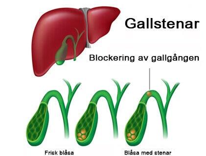 gallsten