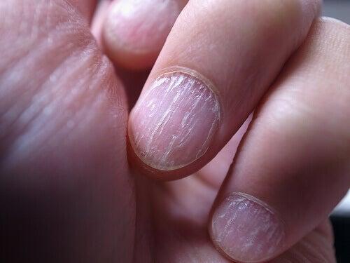 Skadade naglar