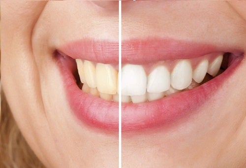 Tänder-vita