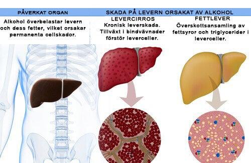 alkoholskadad lever symtom