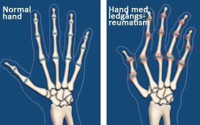 reumatisk artrit symptom