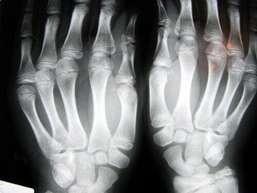röntgenbild av artros