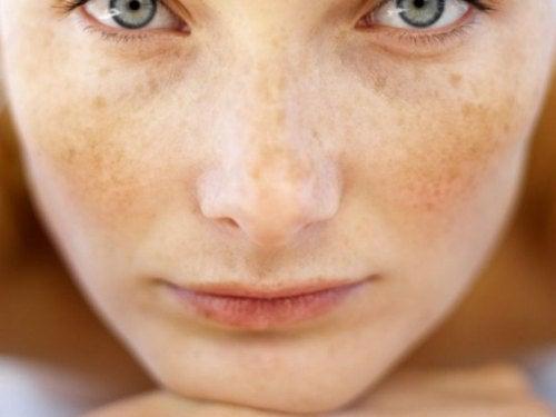 persilja mot fläckar på huden