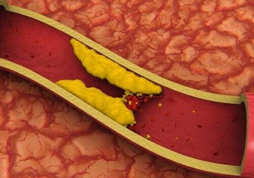 vad beror högt kolesterol på