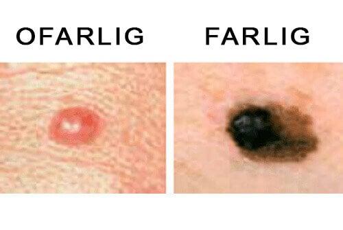 leverfläckar