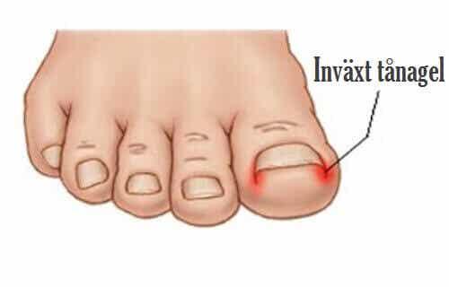 Hur du naturligt behandlar invuxna tånaglar