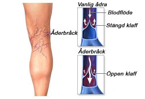 smärta i benen åderbråck