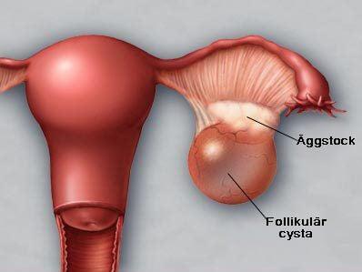cysta äggstock ont i ryggen
