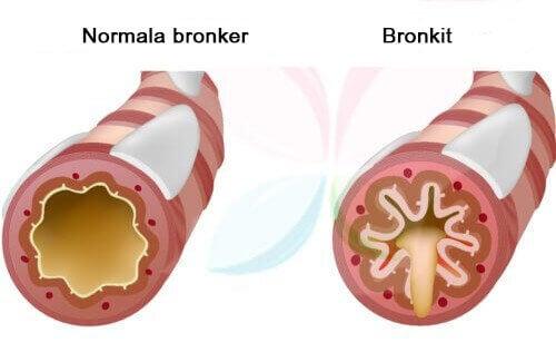 Hosta kan vara symptom på bronkit