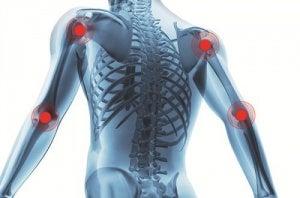 honungsvatten mot artrit