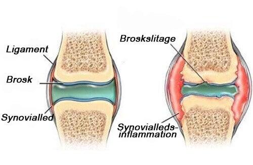 Hur man motverkar smärta vid slitage av brosk