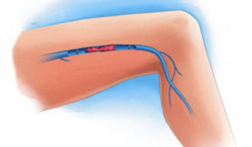 Vanliga symtom på ventrombos i benen