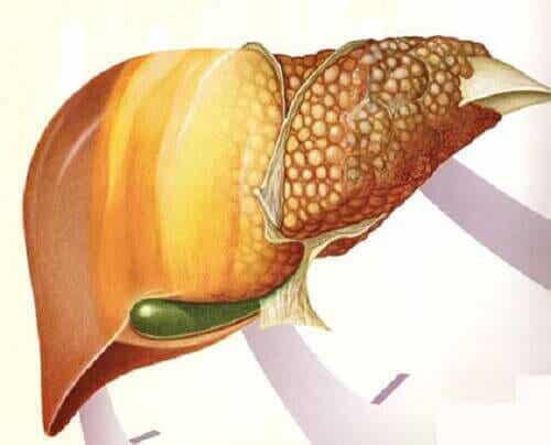 Frukter som förebygger och motverkar fettlever
