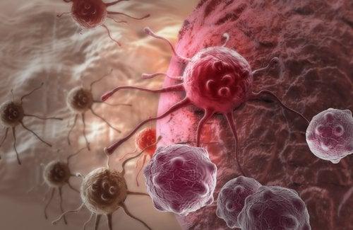 Raffinerat socker är en orsak till att cancer uppstår