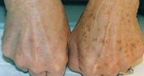 bruna fläckar på huden av solen