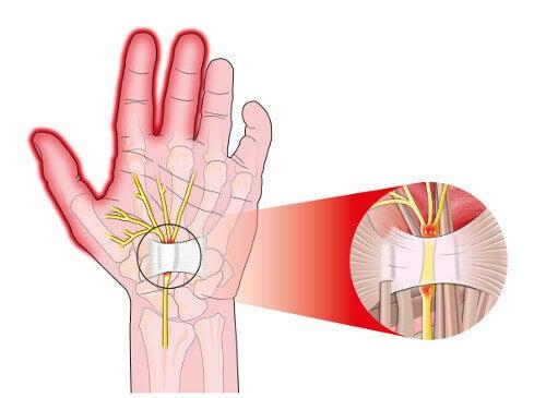 5 sätt att lindra smärtan från karpaltunnelsyndrom
