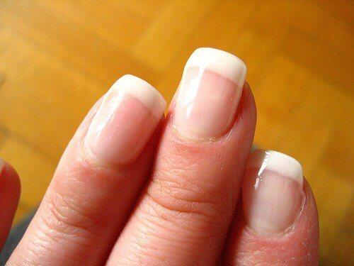 vita naglar brist