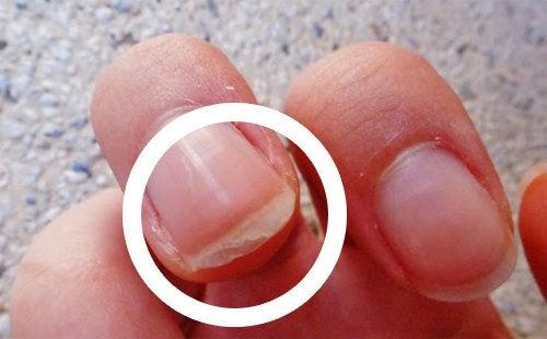 tappa naglar brist