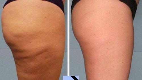 få bort celluliter på 2 veckor