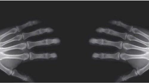 knäcker med fingrarna