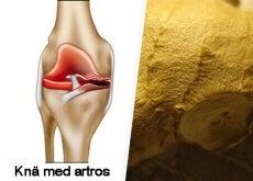 Knä med artros