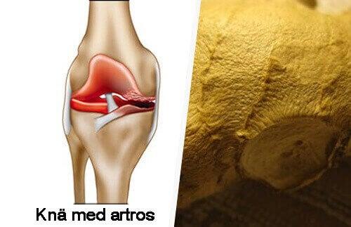 Hur du lindrar symptomen på artros