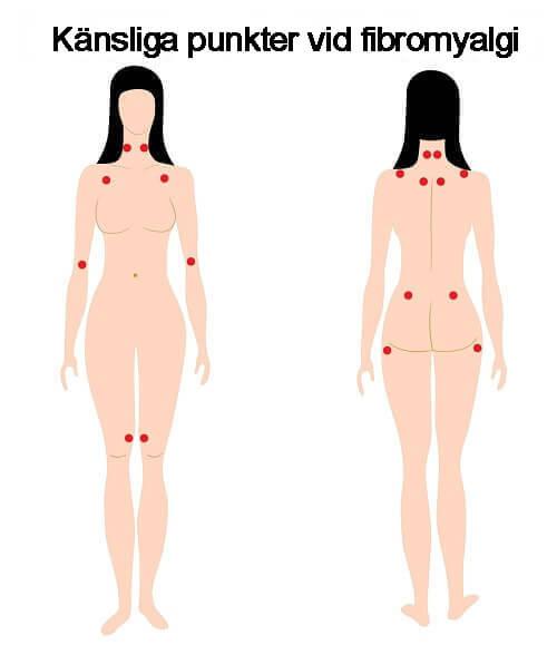Känsliga punkter vid fibromyalgi