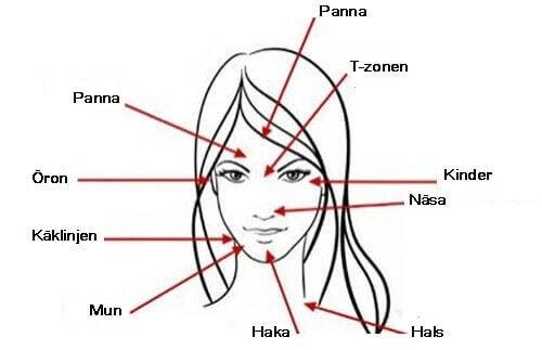 Ansiktets akneområden