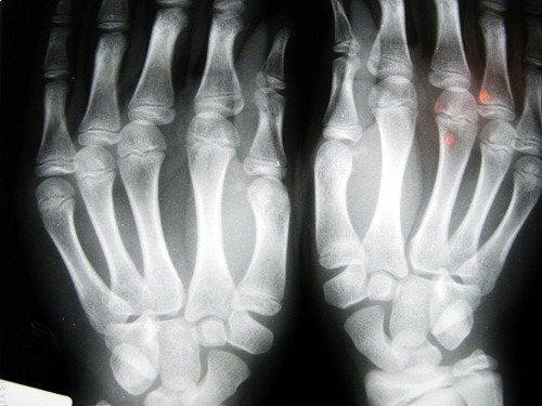 Dina fingrar kan säga dig hur kroppen mår
