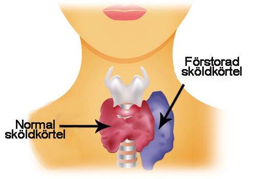 Skillnad på frisk och sjuk sköldkörtel