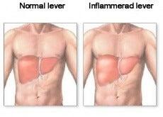 Inflammerad lever