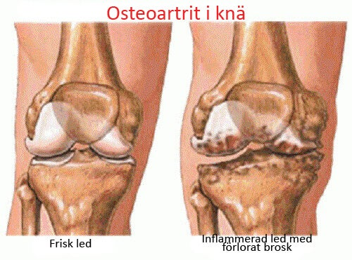 Osteoartrit