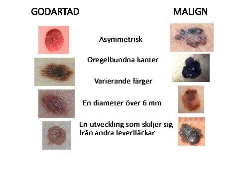 hudcancer symtom bilder
