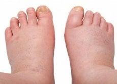 Svullnader på fötterna