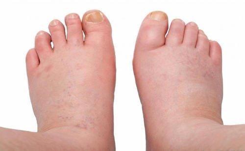 6 behandlingar för svullnader på vrister, fötter och ben