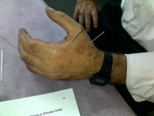 Akupunktur på handen