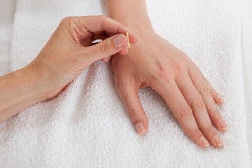 Akupunktur-4