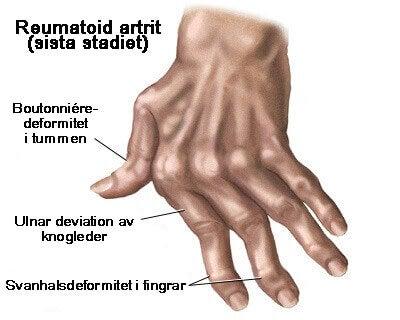 Artrit i händerna