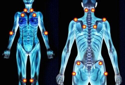 Örter som lindrar symtom vid fibromyalgi