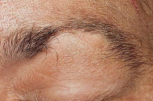Behandla håravfall från ögonbryn och ögonfransar