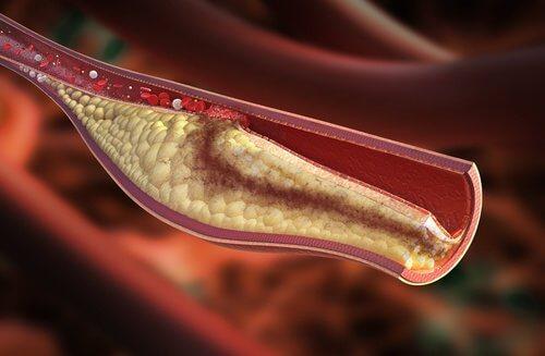 varningssignaler för högt kolesterol