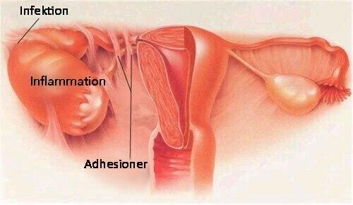 symtom på inflammation