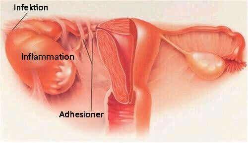 Symtom för bäckeninflammation (PID)