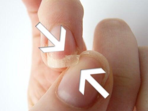 biter på naglarna
