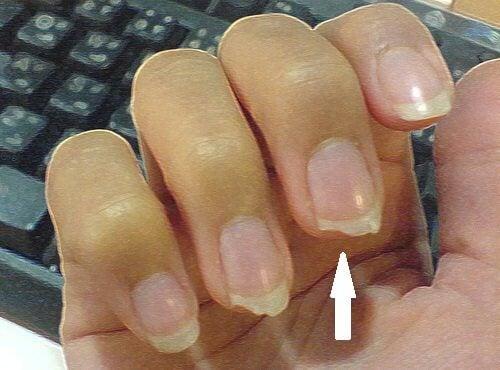 bita på naglarna orsak