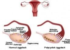 polycystiskt ovariesyndrom