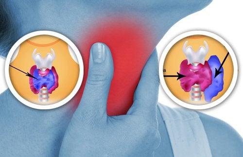 naturligt behandla sköldkörteln