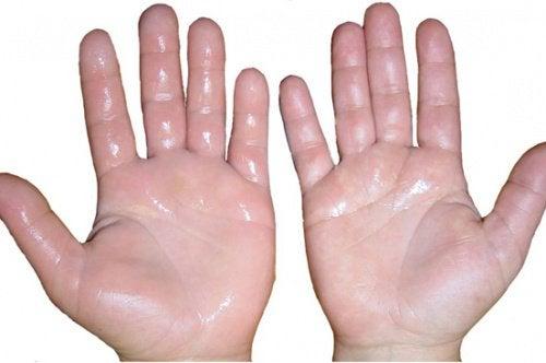 6 huskurer för svullna händer